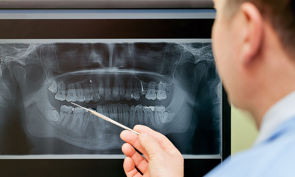 Doctor reviewing x-ray before wisdom tooth removal - Rotary Way, CA
