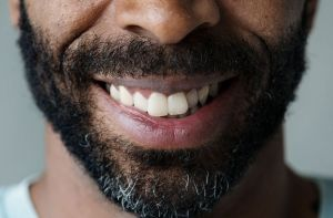 Smiling closeup of man's mouth - Dental Implants, Vallejo CA