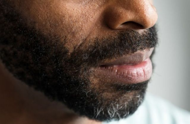closeup-of-a-mouth-of-a-black-man-PAD2JH7-768x511