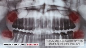 X-ray image of wisdom teeth and extraction- Vallejo, CA